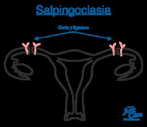 Salpingectomia